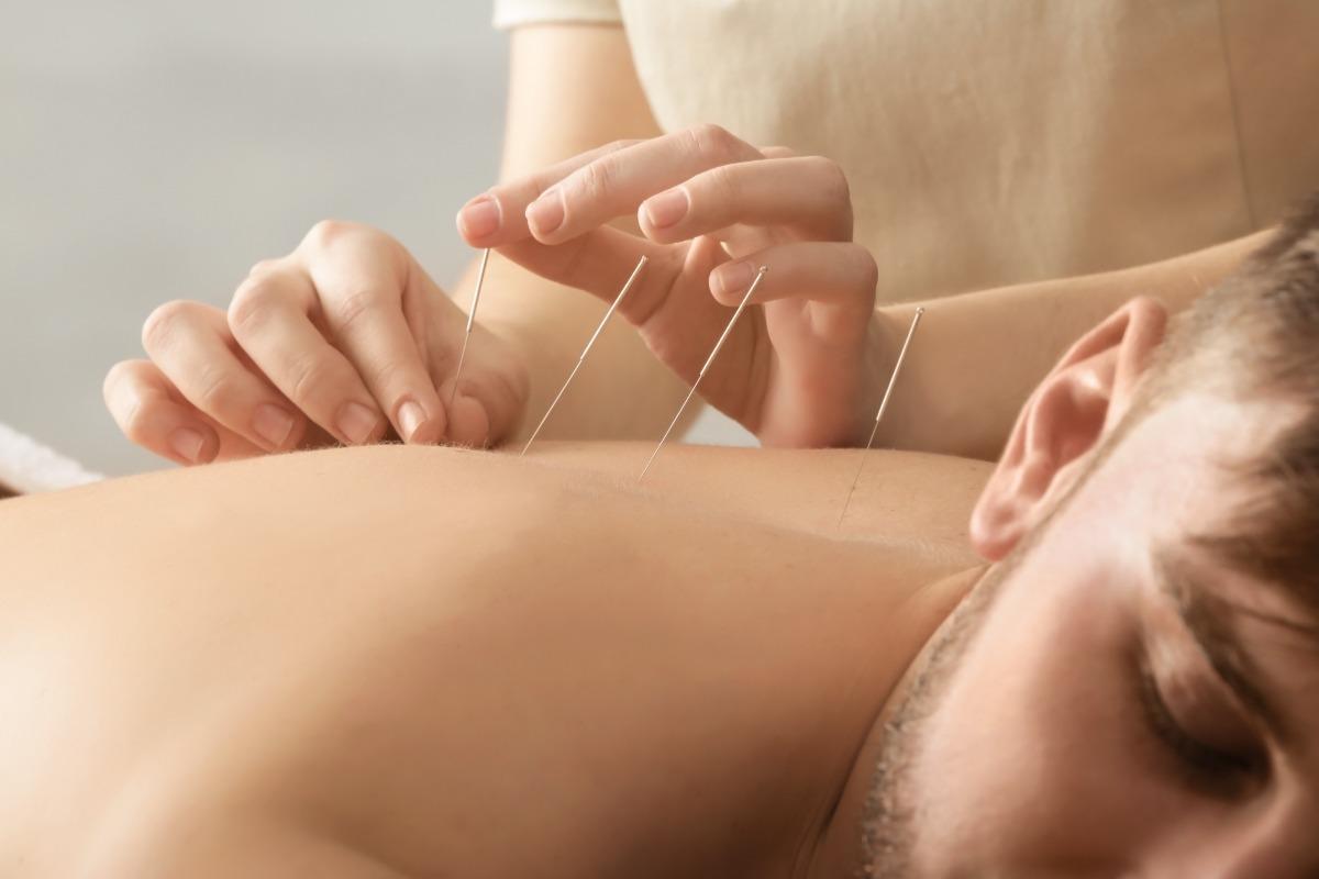 man and acupuncturist